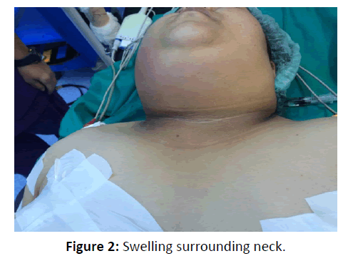 otolaryngology-online-journal-surrounding-neck
