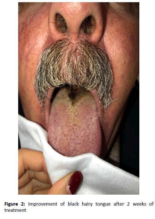 otolaryngology-online-journal-treatment