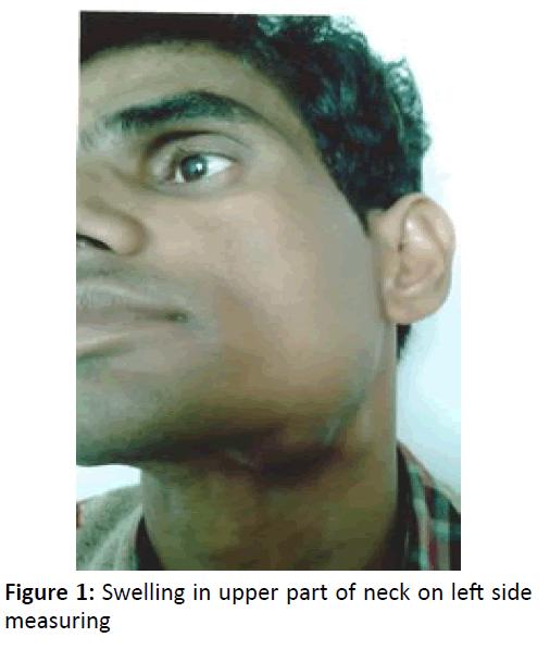 otolaryngology-online-journal-upper-part-neck