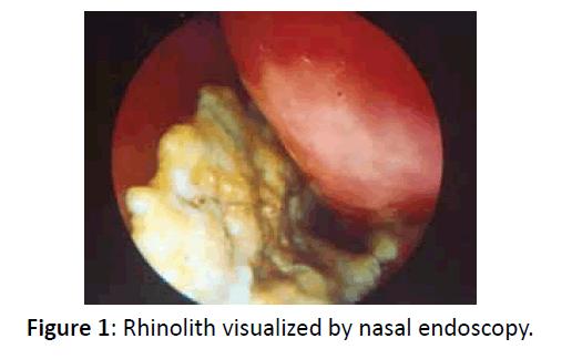 otolaryngology-online-journal-visualized-nasal-endoscopy