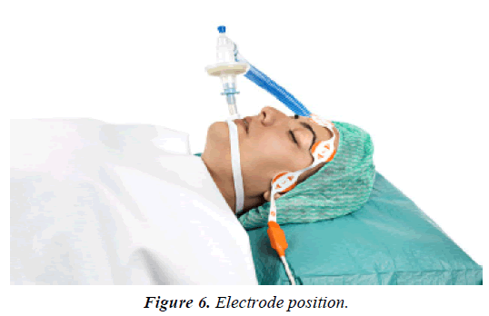 pain-management-and-therapy-Electrode-position