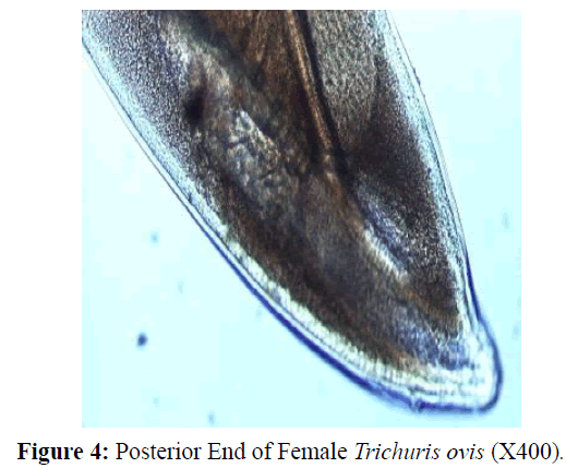 parasitic-diseases-diagnosis-Female-Posterior