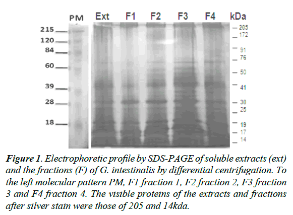 parasitic-diseases-diagnosis-therapy-Electrophoretic-profile