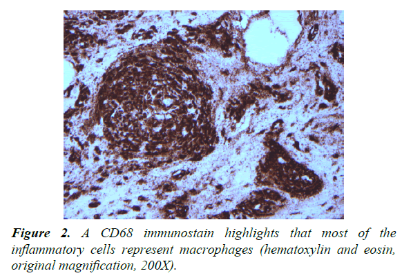 pathology-disease-biology-inflammatory-cells