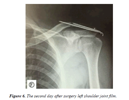 physical-therapy-sports-medicine-shoulder-joint