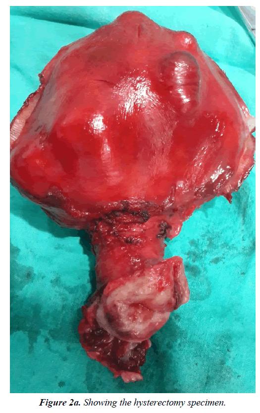 pregnancy-and-neonatal-medicine-hysterectomy