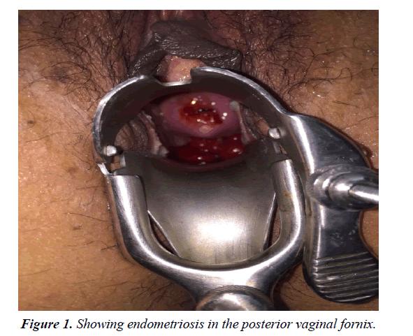 pregnancy-and-neonatal-medicine-vaginal-fornix