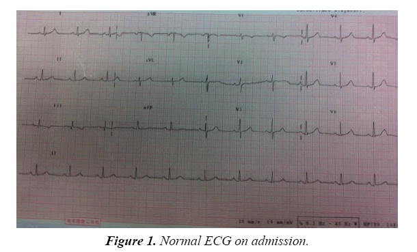 pulmonology-clinical-research-normal-ECG