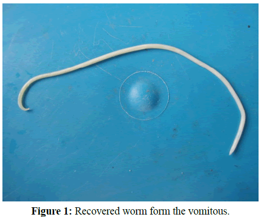 pure-applied-zoology-Recovered-worm
