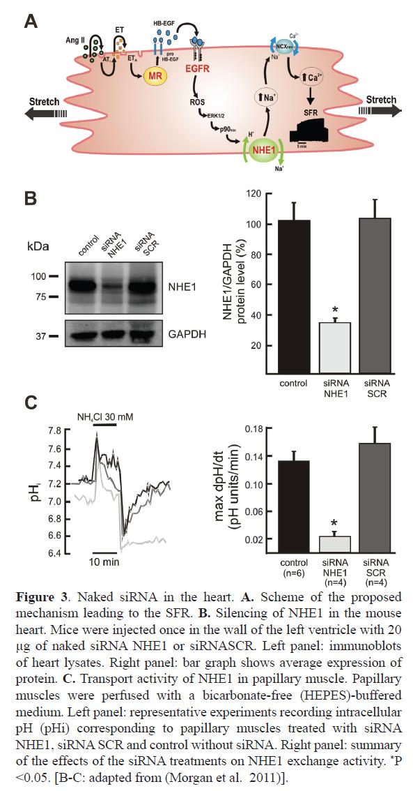 rnai-gene-silencing-papillary-muscle