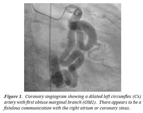 surgery-invasive-procedures-Coronary-angiogram