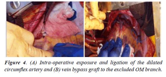 surgery-invasive-procedures-dilated-coronary-sinus