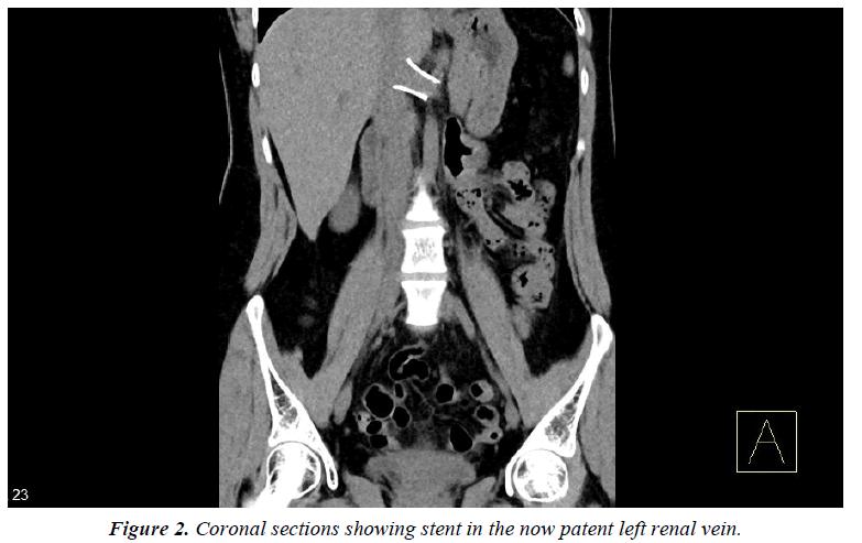 surgery-invasive-procedures-renal-vein