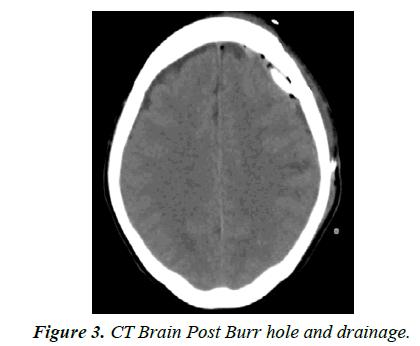 trauma-critical-care-Post-burr