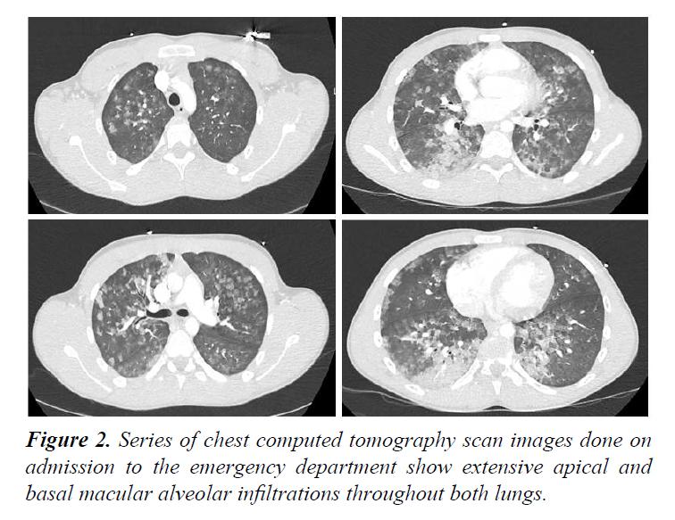 trauma-critical-care-alveolar-infiltrations
