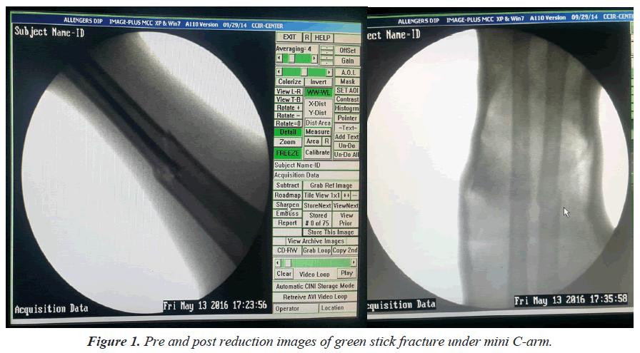 trauma-critical-care-green-stick-fracture