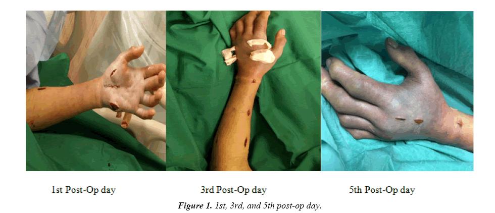 trauma-critical-care-post-op-day